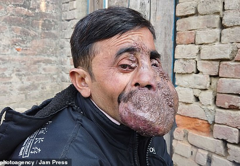Indian priest with a massive tumour on his face is worshipped as a GOD in his village